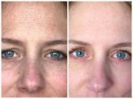rodan-fields-before-after